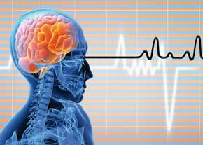 سکته مغزی علل اصلی مرگ و میر و ناتوانی در جهان است